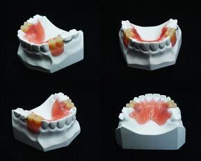New Teeth Stamford CT - New Teeth One Day