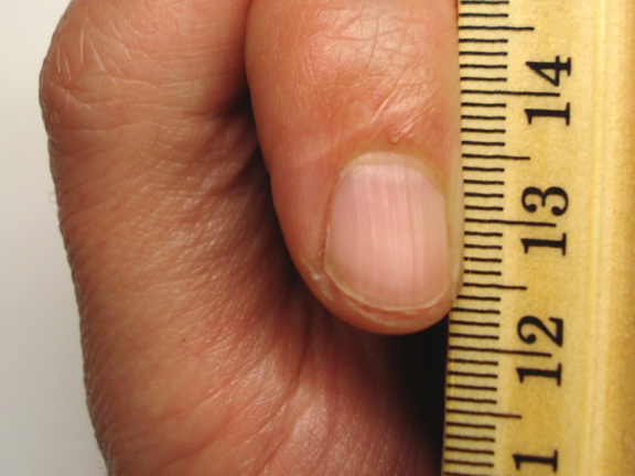 Fingernail and Toenail Abnormalities: Nail the Diagnosis