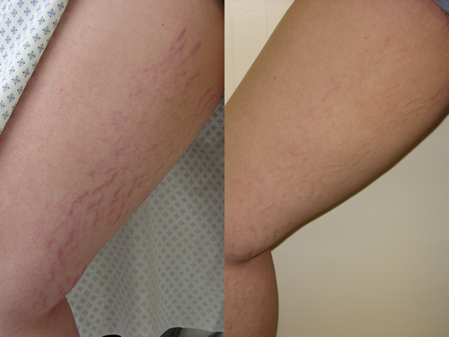 how to get rid of growth spurt stretch marks