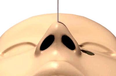 ขั้นตอนการจัดทรงจมูกด้วยไหมสกรูเฉพาะทาง (Nose up with Skru Thread)
