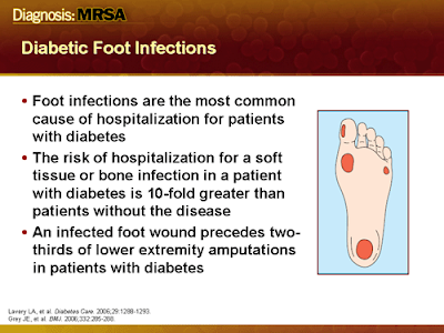 Treating a diabetic foot ulcer 1984