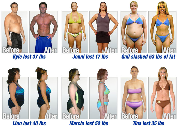Successful Story About Losing Weight with HCG Diet
