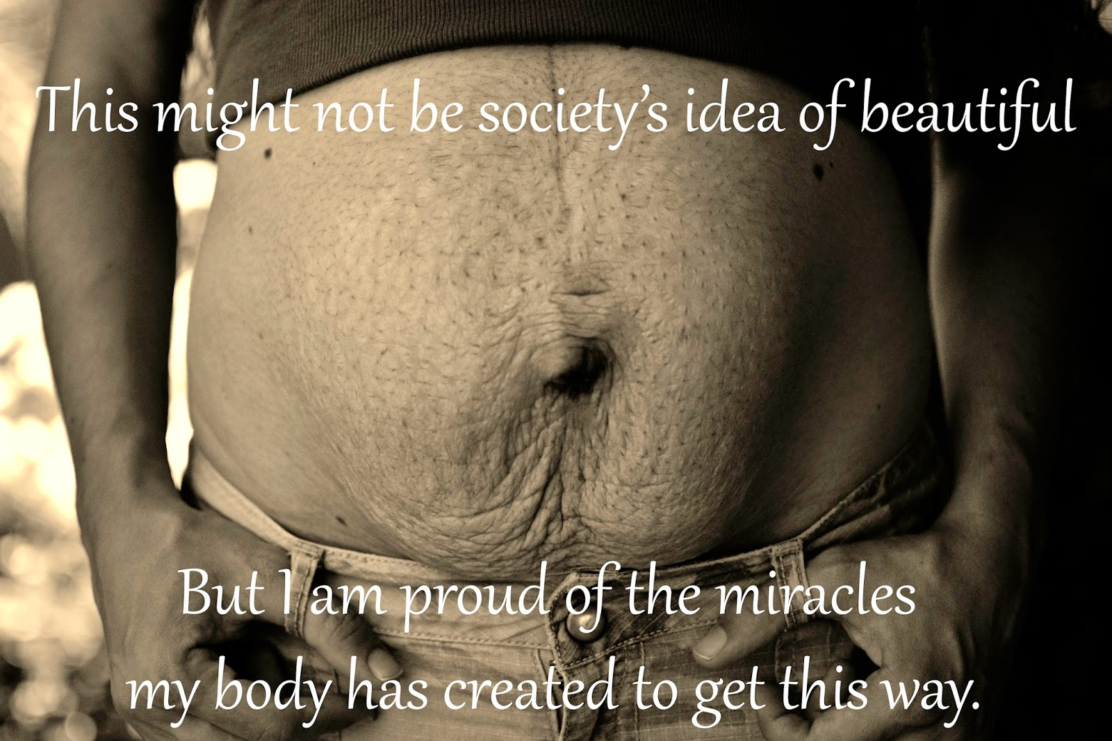This might not be society's idea of beautiful, but I'm proud of the miracles my body has created.