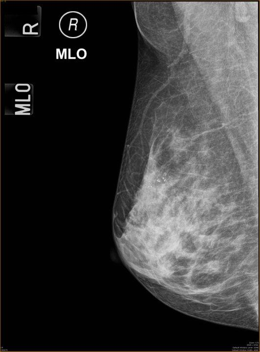 Breast mri and dcis