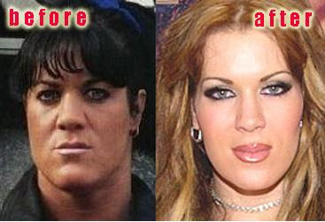 Chyna Doll Plastic Surgery Before and After Eyelid Surgery