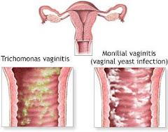 Waa maxay cudurka dumarka ku dhaca ee vaginitis