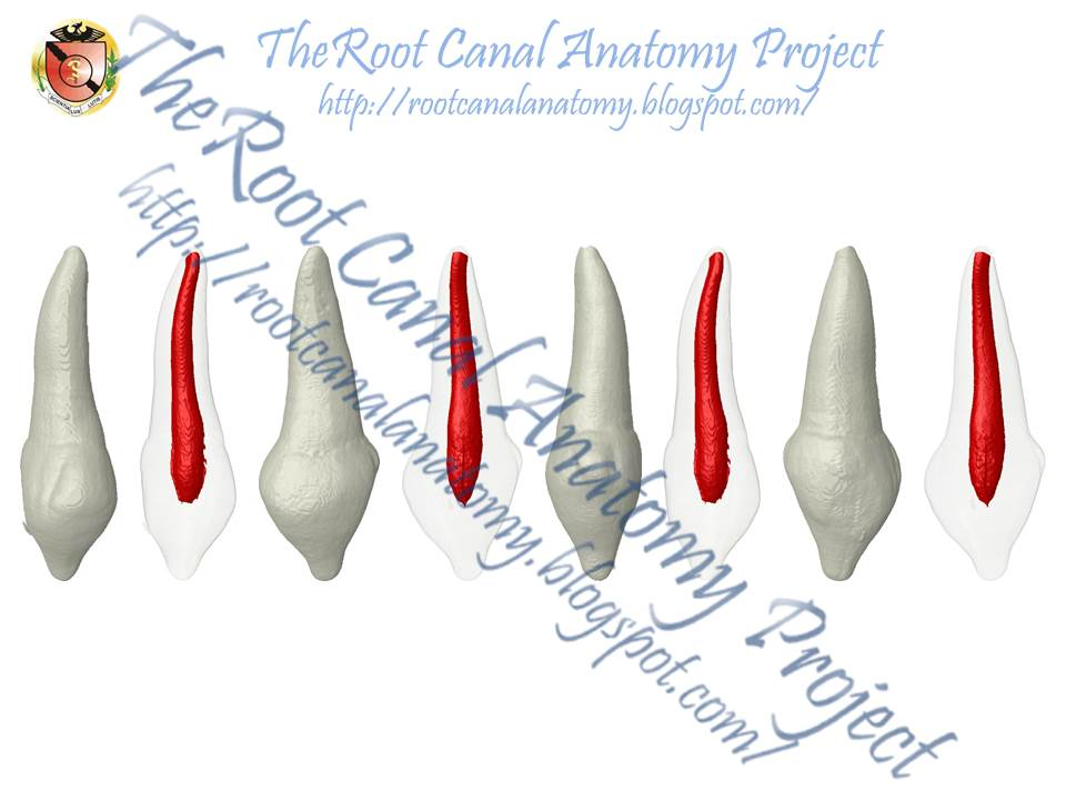 The Root Canal Anatomy Project: Peg-Shaped Lateral Incisors (Conoid)