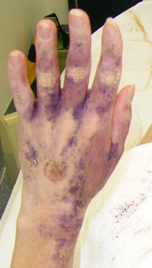 Return of palmar hyperhidrosis 10 months after T2 ETS
