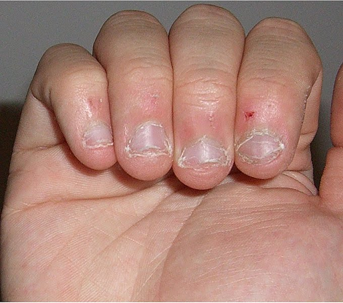 My Bite Sized Nails