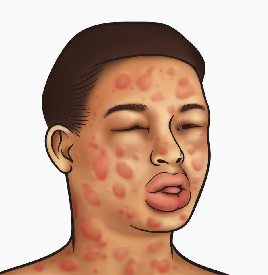 Safra Taşı Ağrısı Nasıl Geçer: Safra Kesesi Ağrısına Bitkisel Tedavi