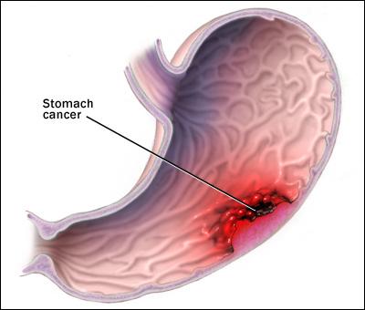 diet in stomach cancer, diet for stomach cancer patients, diet in gastric cancer
