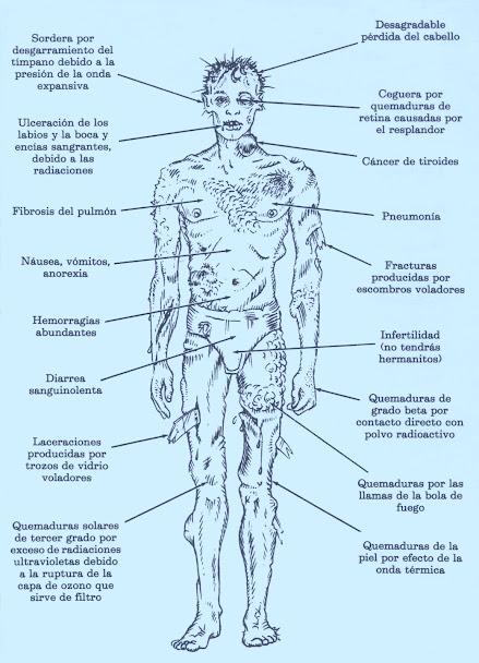 Efectos de un ataque nuclear sobre el cuerpo humano