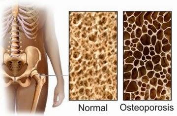 Hubungan Tulang Keropos ( Osteoporosis ) Dengan Menopause Pada Wanita