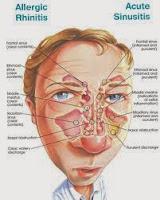 Obat Penyakit Sinusitis Alami