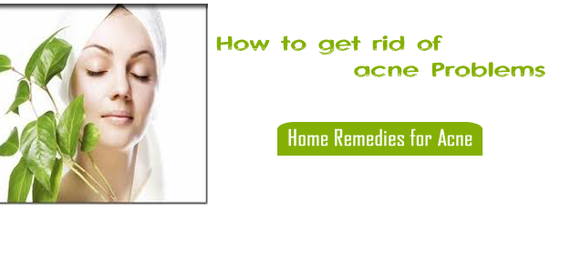 Home Remedies Acne