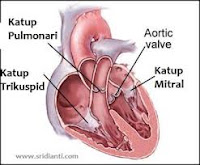 Cara Menyembuhkan Kel/Katup Jantung Bocor Dan Bermasalah