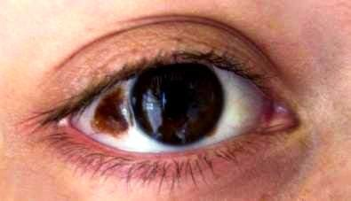 Ota lesion in the sclera