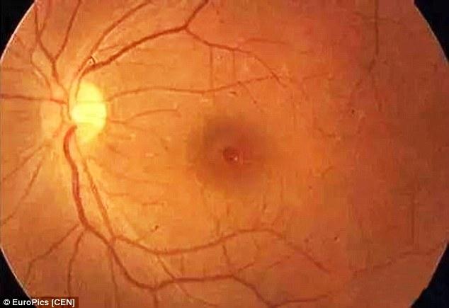 فلاش الكاميرا يصيب الرضع بالعمى
