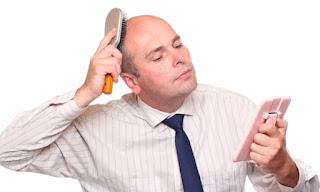 العلاقة بين تساقط الشعر والضغوط النفسية