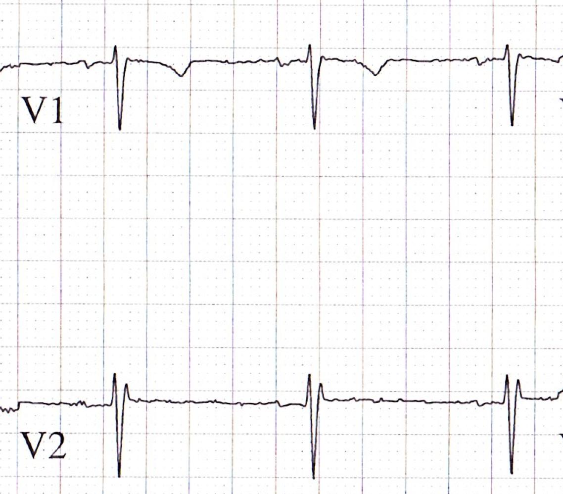 Rsr Pattern Ecg v2 Shows an Rsr' Pattern
