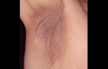 macchie scure sul pene