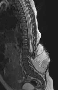 neuroradiology cases: meningomyelocele mri, Skeleton