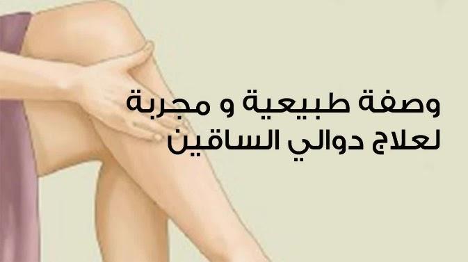وصفة لعلاج دوالي الساقين