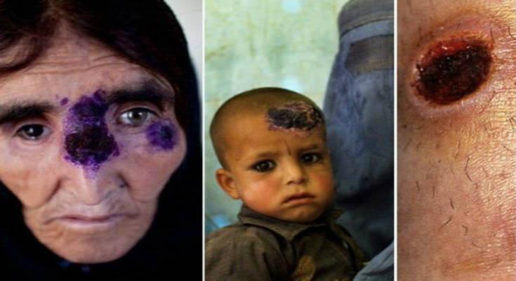 Σαρκοφάγα νόσος «το΄σκασε» από το Ισλαμικό Κράτος και εξαπλώνεται μέσω προσφύγων