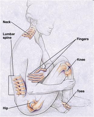http://2.bp.blogspot.com/-epK6Cyau6ho/UY0OU1ZES2I/AAAAAAAAGaY/r-xD5xlCbsQ/s1600/Osteoarthritis.png