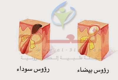 علاج حب الشباب | حل مشكلة و أفضل طريقة لعلاج حب الشباب acne treatment