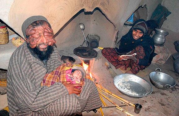 Homem sem rosto e mulher sem perna t m uma menina saud vel for Terrace meaning in urdu