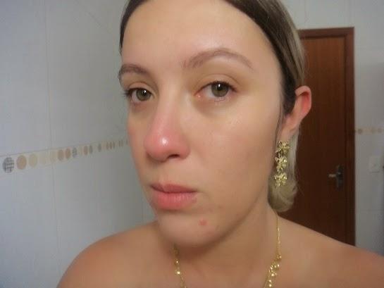 Tracta - Sabonete Facial Pele com Acne