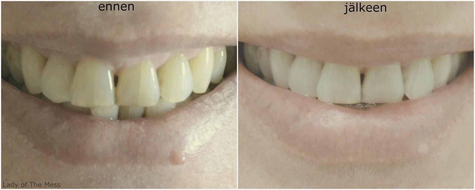 hampaidenvalkaisu, teeth whitening, swiss whitening