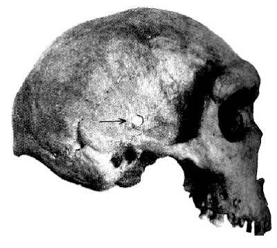 Ancient Bullet in a Rhodesian Man's Skull: Out-of-place Artifacts (OOPArt)