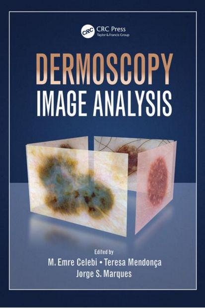 Dermoscopy Image Analysis (Oct 9, 2015)