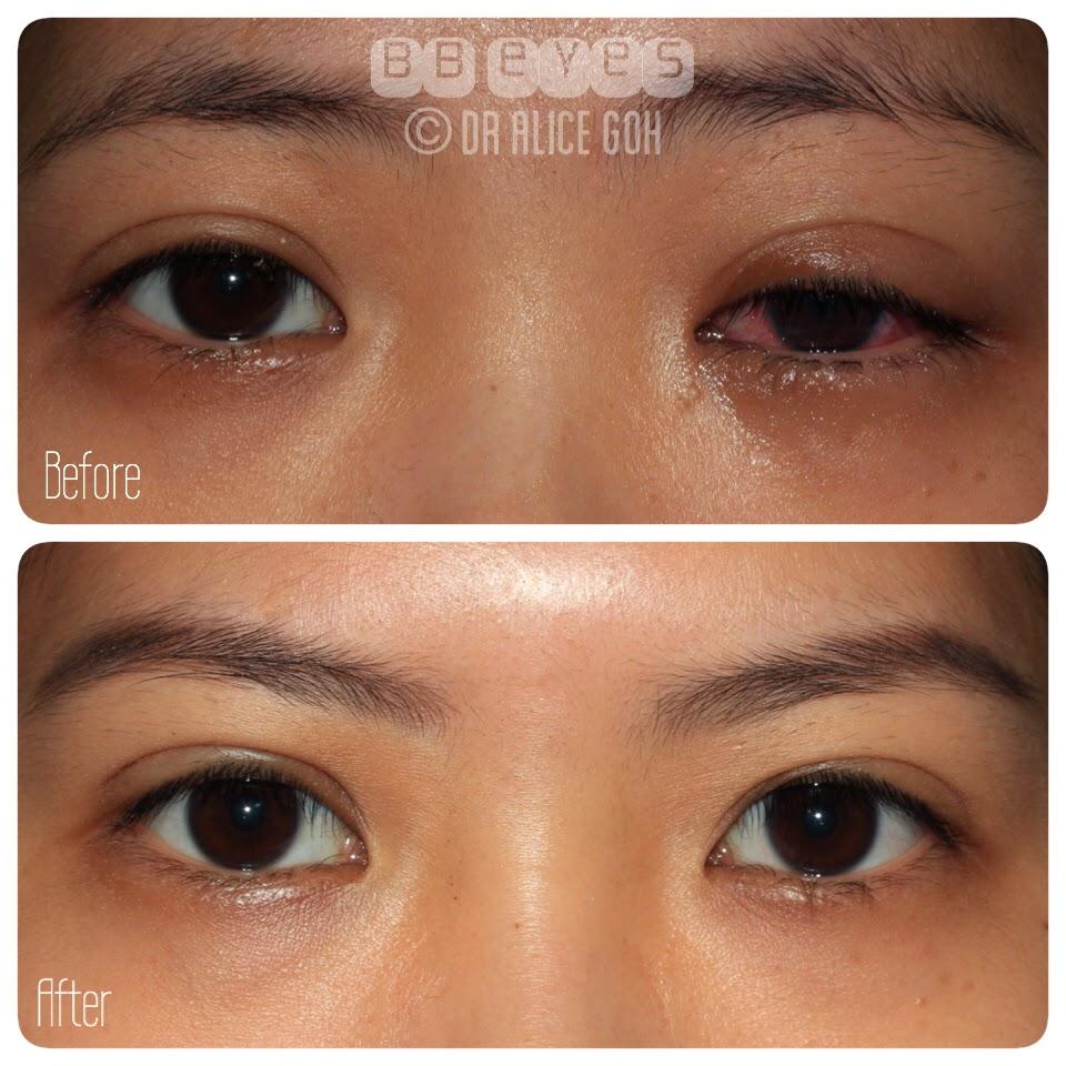 Swollen lower inner eyelid