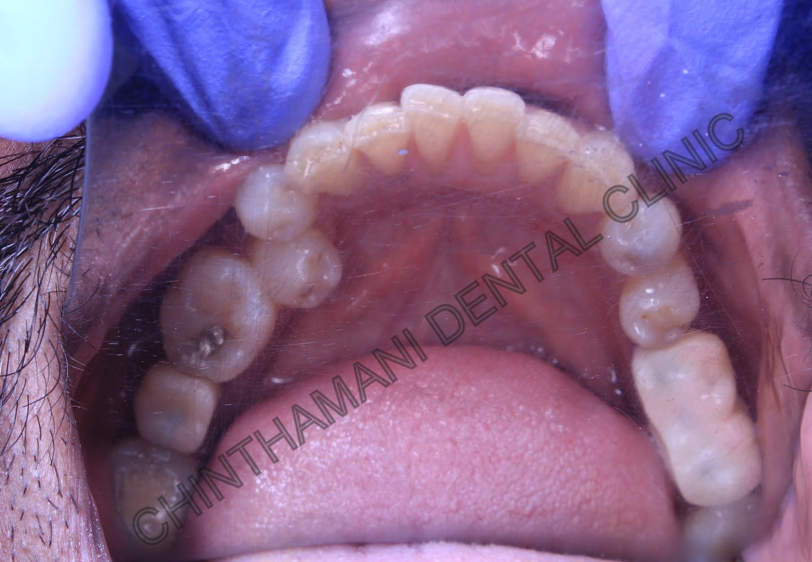 molar tooth implant - HD 1600×1108
