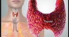 Obat Penyembuh Penyakit Hipertiroid Secara Alami