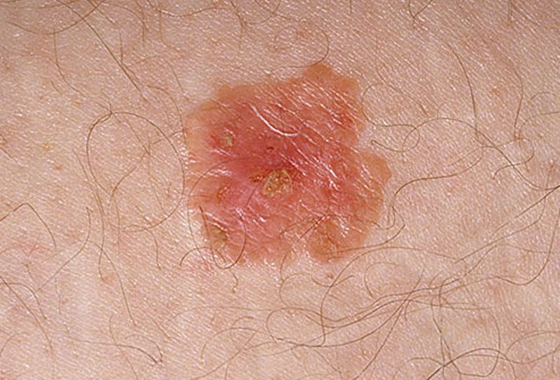 skin cancer early stages