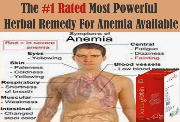 iron deficiency anemia symptoms