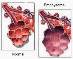 Obat Emfisema Paru Herbal