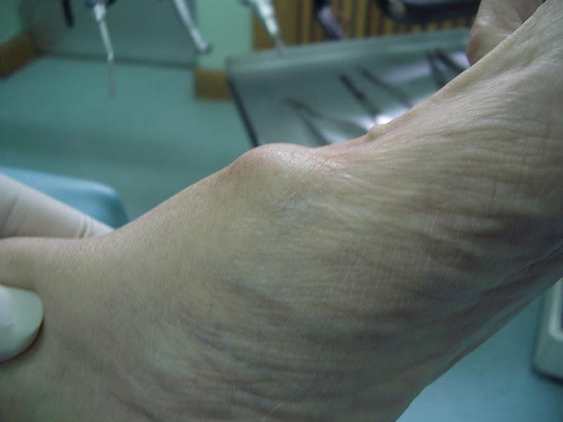 Podo Basas al Día: Ganglión, dedos en garra, quinto supraductus ...