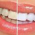 Tips Mudah Memutihkan Gigi Dengan Cepat