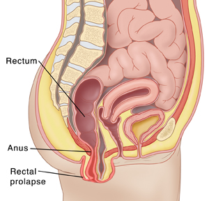 What causes an anal prolapse