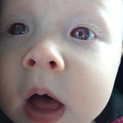 Purple Albino Eyes images