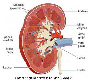 Gejala Penyakit Gagal Ginjal Kronis, Penyebab, Pencegahan