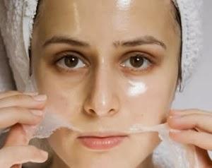 Perawatan Wajah Chemical Peeling