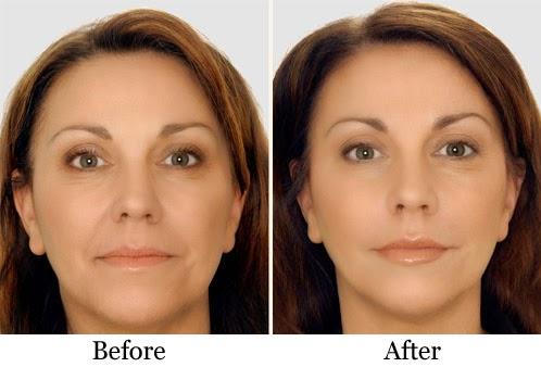 facial structure Improve