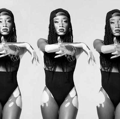 chantelle young, vitiligo, top model, american next top model, maladie de la peau
