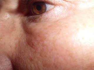 piel del rostro